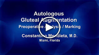 Autologous Gluteal Augmentation Preop Marking by Dr. Mendieta